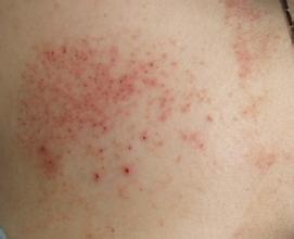 神经性皮炎的具体病因